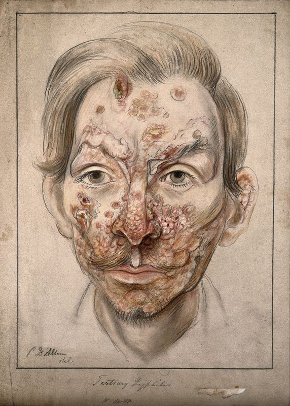 Head of a man with syphilitic lesions affecting his face. Watercolour by Christopher D'Alton, 1874.
