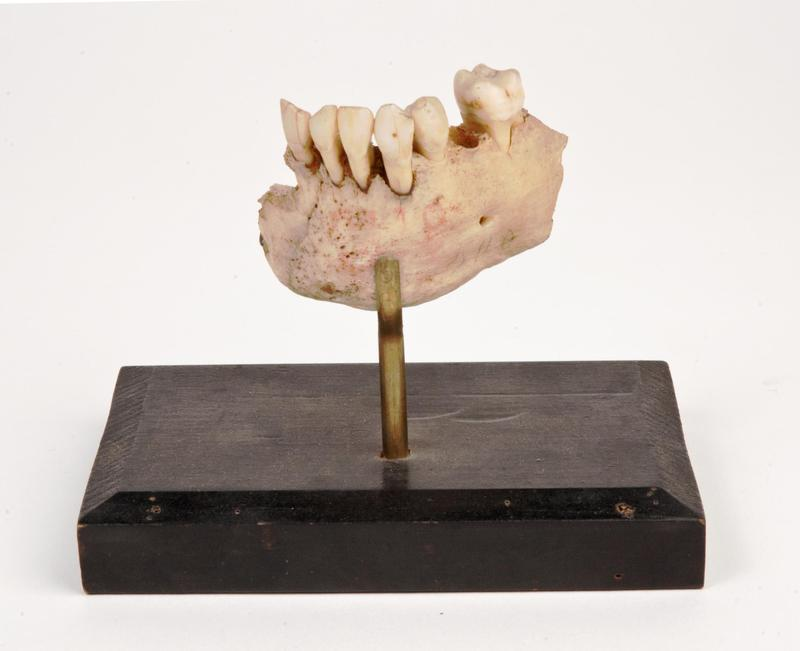 Fragment of mandible lost from gunshot wound