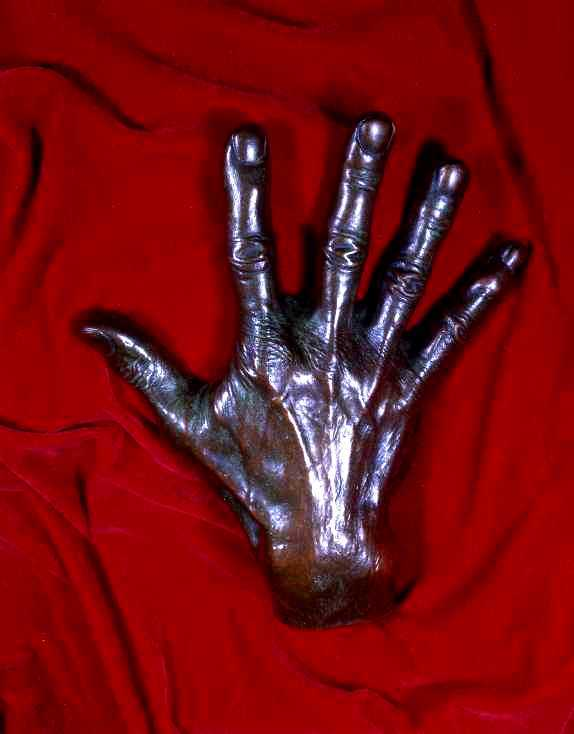 Cast of the Hand of Harvey Cushing