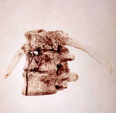 Left Lateral View of Vertebrae of President James A. Garfield