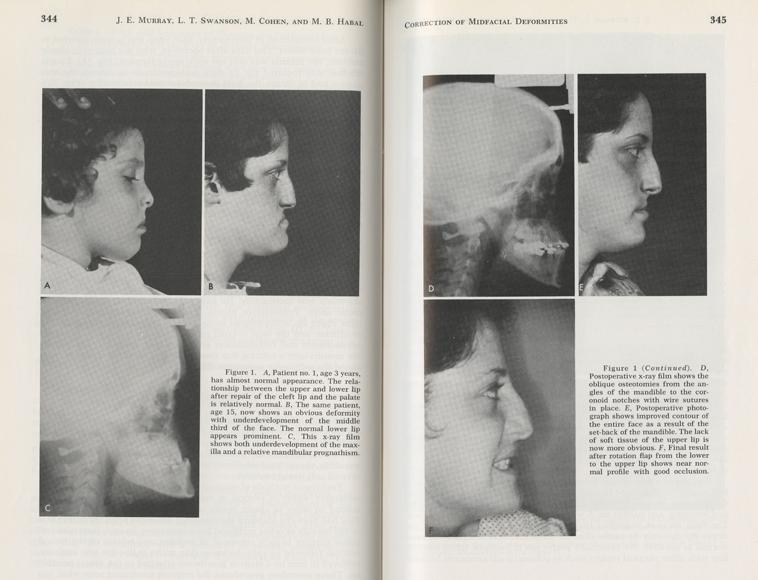 Correction of Midfacial Deformities