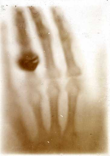 Hand mit Ringen: Radiographic print