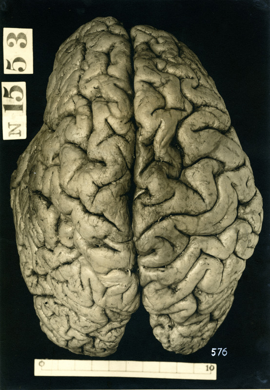 Brain of an alcoholic vagrant