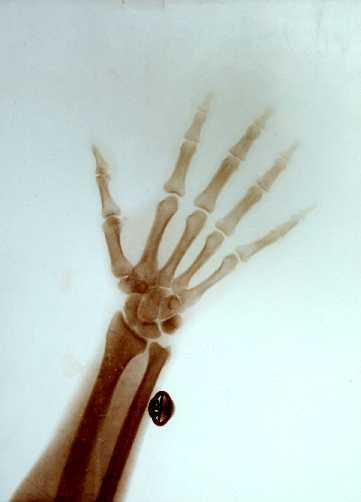 X-ray of the Hand and Wrist of Nicholas II, Emperor of Russia: radiographic prints