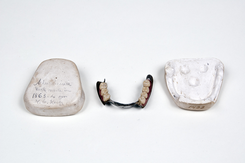 Inferior Partial Denture, Swaged Aluminum, Carved Teeth