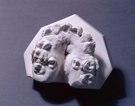 Dental cast illustrating a cleft palate