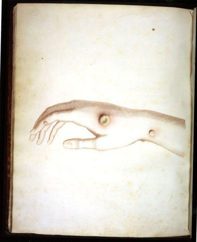 Hand of Sarah Nelmes