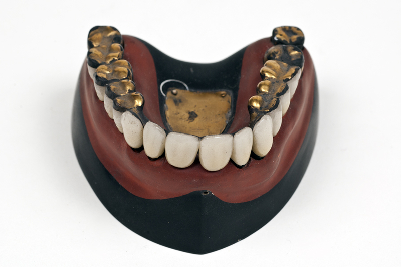 Superior denture/model with gold restorations