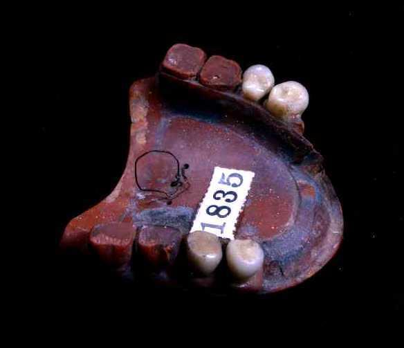 Superior Rubber Dentures worn by Ralph Waldo Emerson