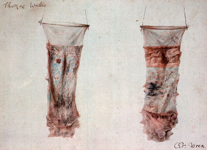 Tyhpoid lesions in the small intestine. Illustration by T. Willis and C. Wren, 1800s.