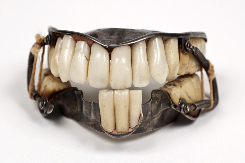 Silver Dentures Attached by Buccal Wire Springs