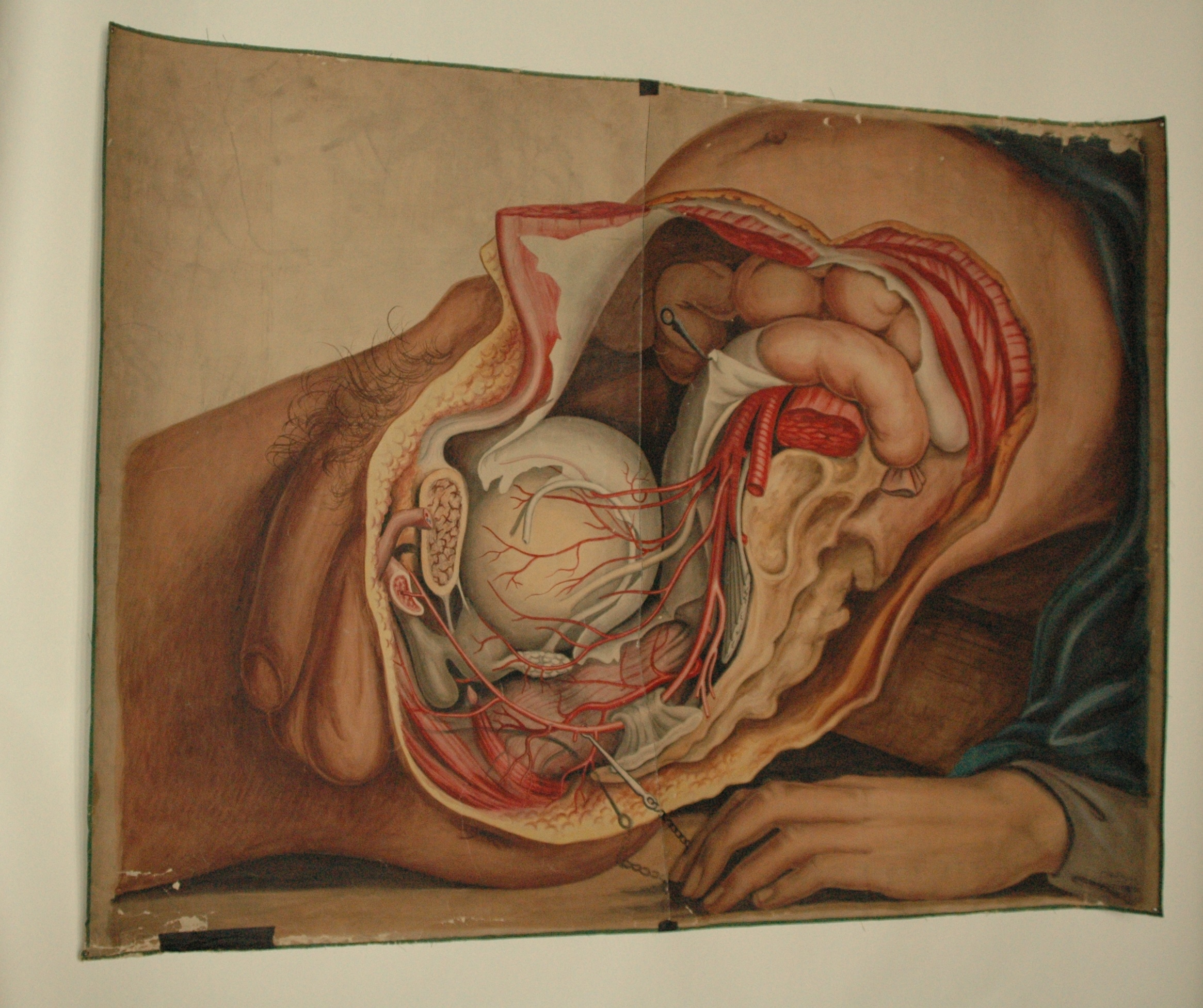 Teaching Watercolor Of Pelvic Organs And Arteries Of The Male Body