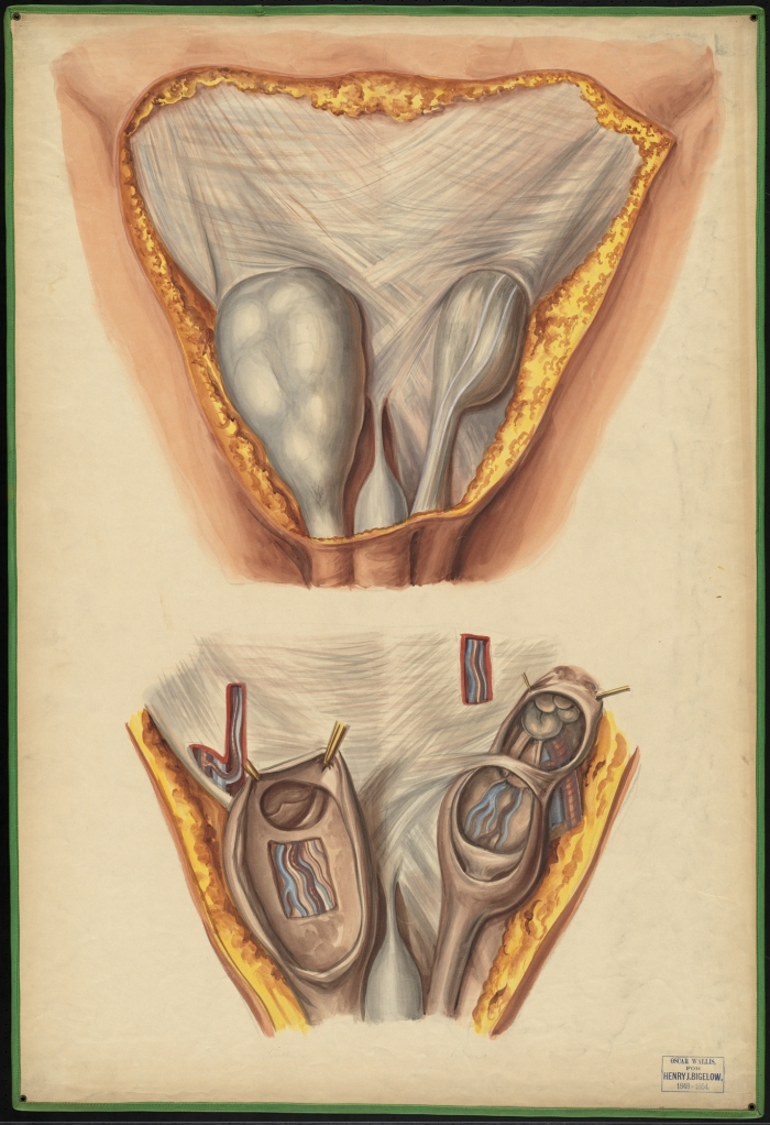 Teaching watercolor of indirect and direct inguinal hernias · OnView ...
