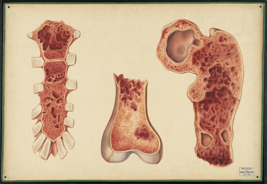 Teaching Watercolor Of Osteomalacia  U00b7 Onview  Digital