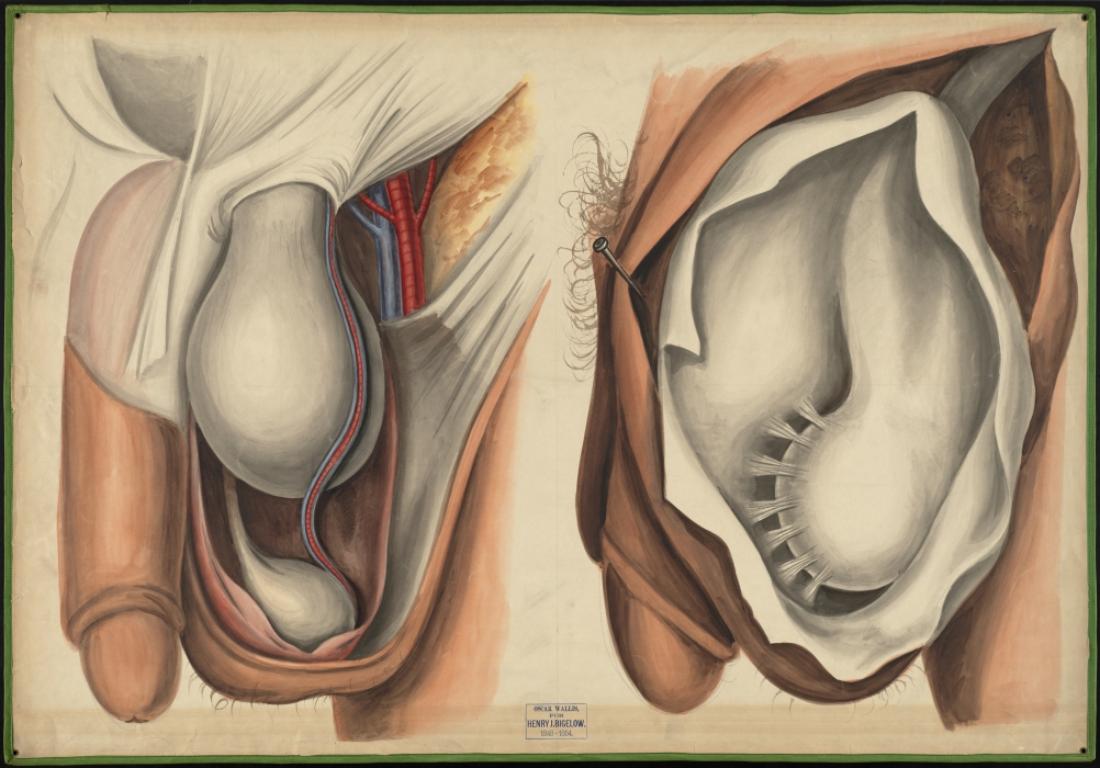 Teaching Watercolor Of The Tunica Vaginalis And The Vessels Of The