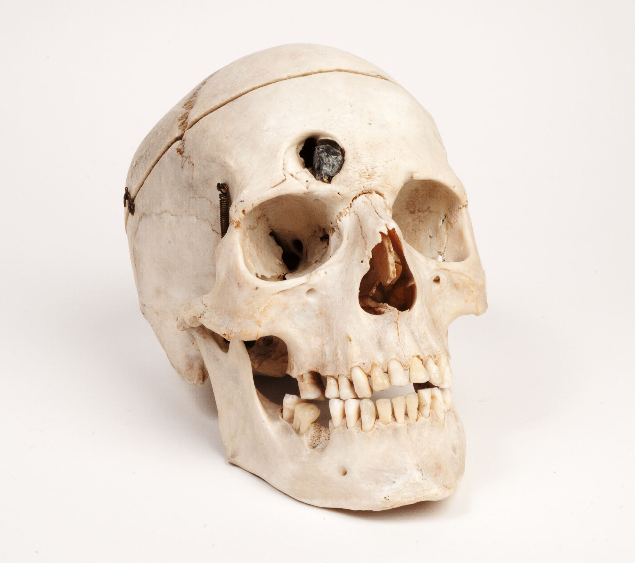 Skull with ball lodged in frontal bone · OnView: Digital Collections ...