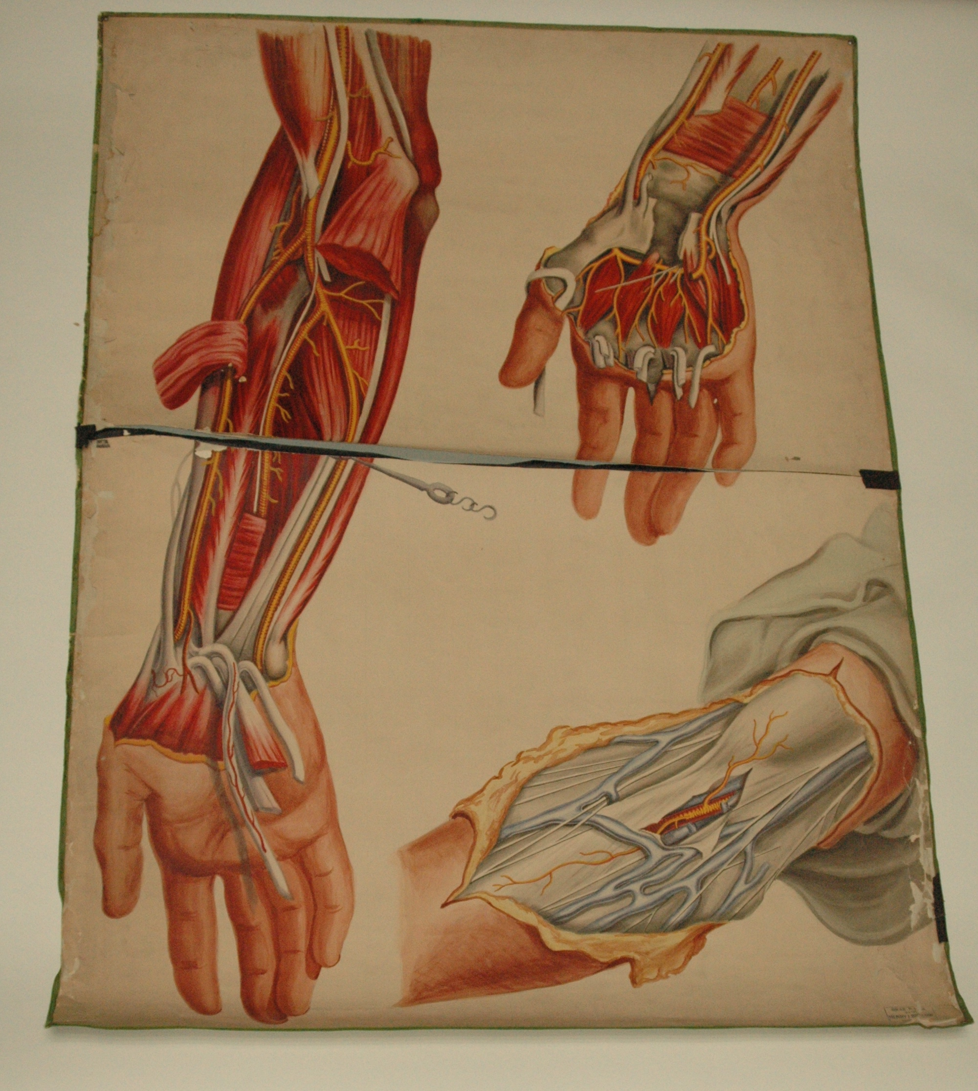 Teaching Watercolor Of Arteries Of The Arm And Hand After Richard