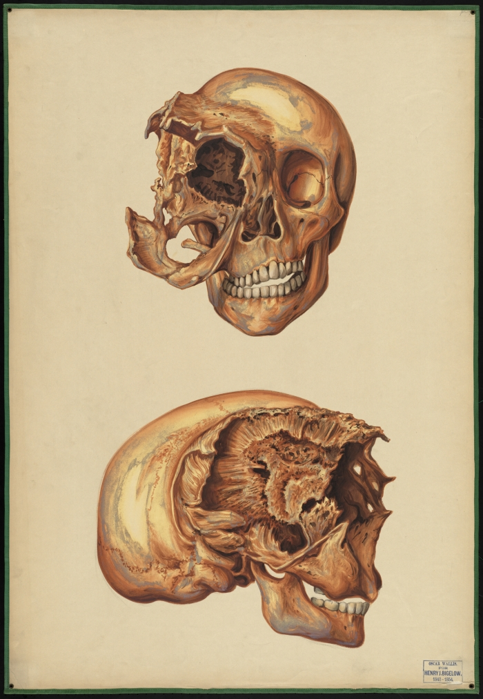 Teaching watercolor of skull deformed near the right eye socket ...