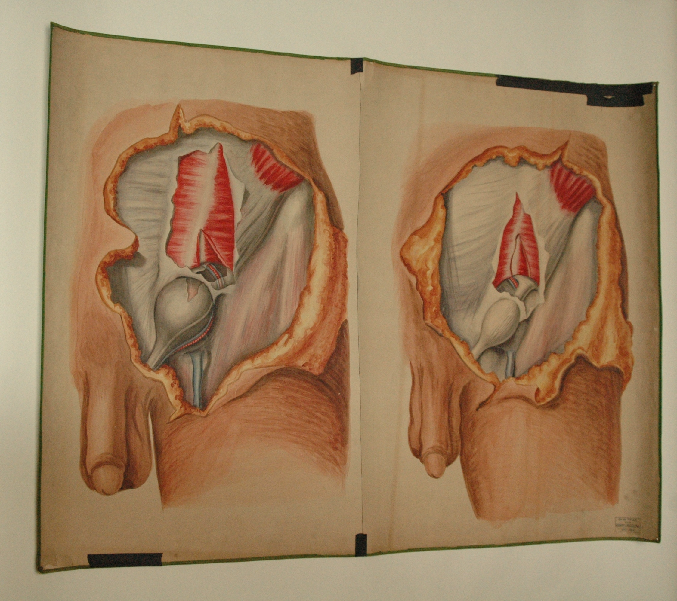 Teaching watercolor of male with inguinal hernia, after Richard ...