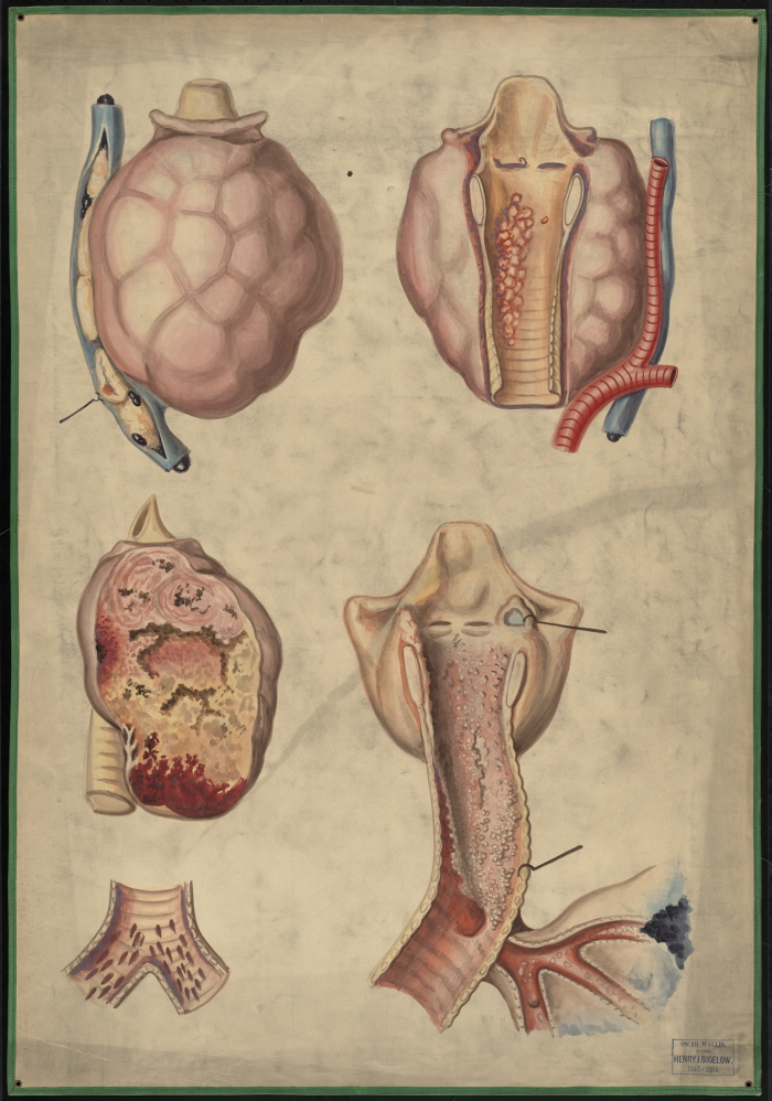 Teaching watercolor of diseases of the larynx, trachea, and thyroid ...