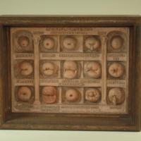 """Dickinson-Belskie model """"Forms of Cervix"""", 1945"""
