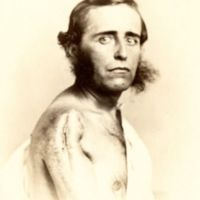 Man with resectioned shoulder joint, labelled in ink on verso.