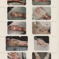 Cocoanut Grove injuries