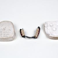 Inferior Partial Denture, Swaged Aluminum, Carved Teeth