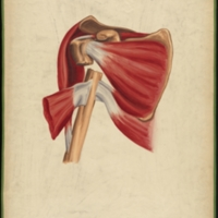 Teaching watercolor of a fracture of the neck of the humerus immediately below the tubercles and above the insertions of the pectoralis major, latissimus dorsi, and teres major muscles