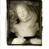 Platinum/ palladium print of cast of child with tumor