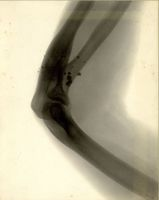 Radiograph of the right elbow of Henry Pickering Bowditch, showing fragments of bullet