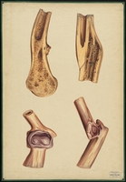 Teaching watercolor of the reparation of fractures, resulting in both united and ununited fractures