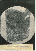 Photograph of a microscope slide from Camp Devens Case 219