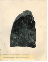A photograph of the right lung from Camp Devens Case 223