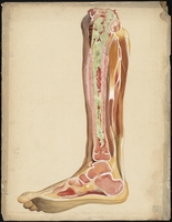 Teaching watercolor of interior of diseased tibia