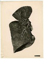 Photograph of a lung slide from Camp Devens Case 218