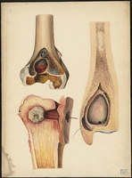 Teaching watercolor of diseased bone
