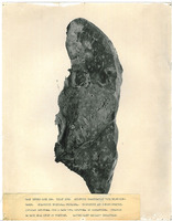 Photograph of a right lung from Camp Devens Case 224