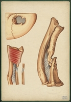Teaching watercolor of a radius and tibia after fracture, and of a fracture of the cranium with a portion of the bone removed by a trephine